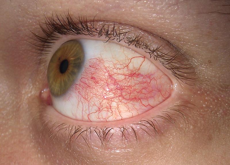 Fájdalmas szem