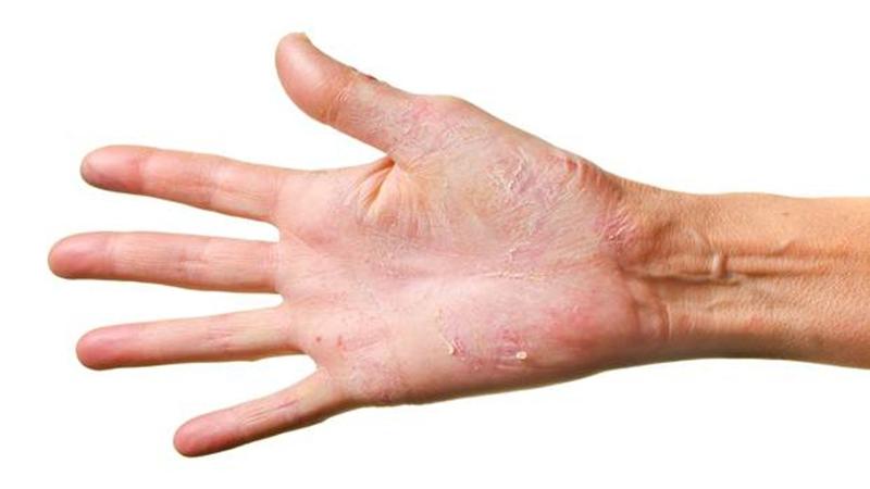 kiütés talpon és tenyéren bőrkiütések vörös foltok formájában a hason